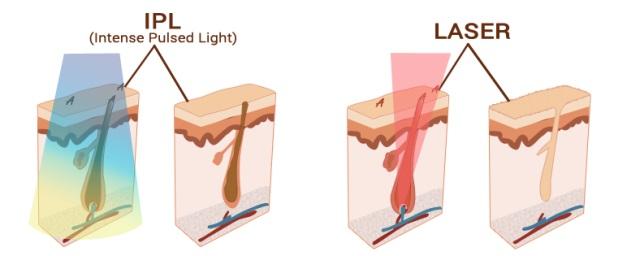 ipl vs laser